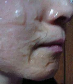 炭酸パック 顔