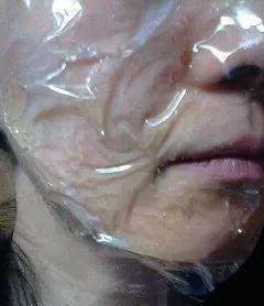 フェブリナ 炭酸パック 顔